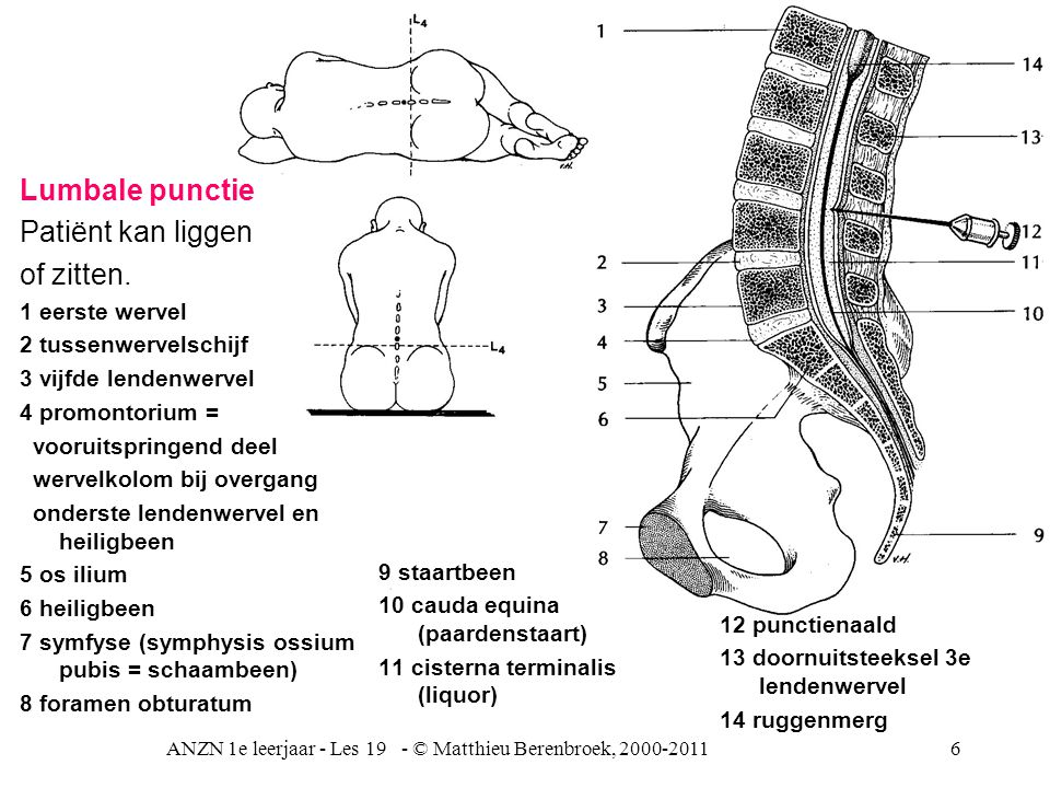 ANZN 1e leerjaar - Les 19 - © Matthieu Berenbroek, 2000-201127Vliezen/meningen Subarachnoid granulatie Dura mater Emissaria venen (Anker venen) Superior sagittal sinus Superior sagittal sinus = bovenste pijlnaad (v.d.