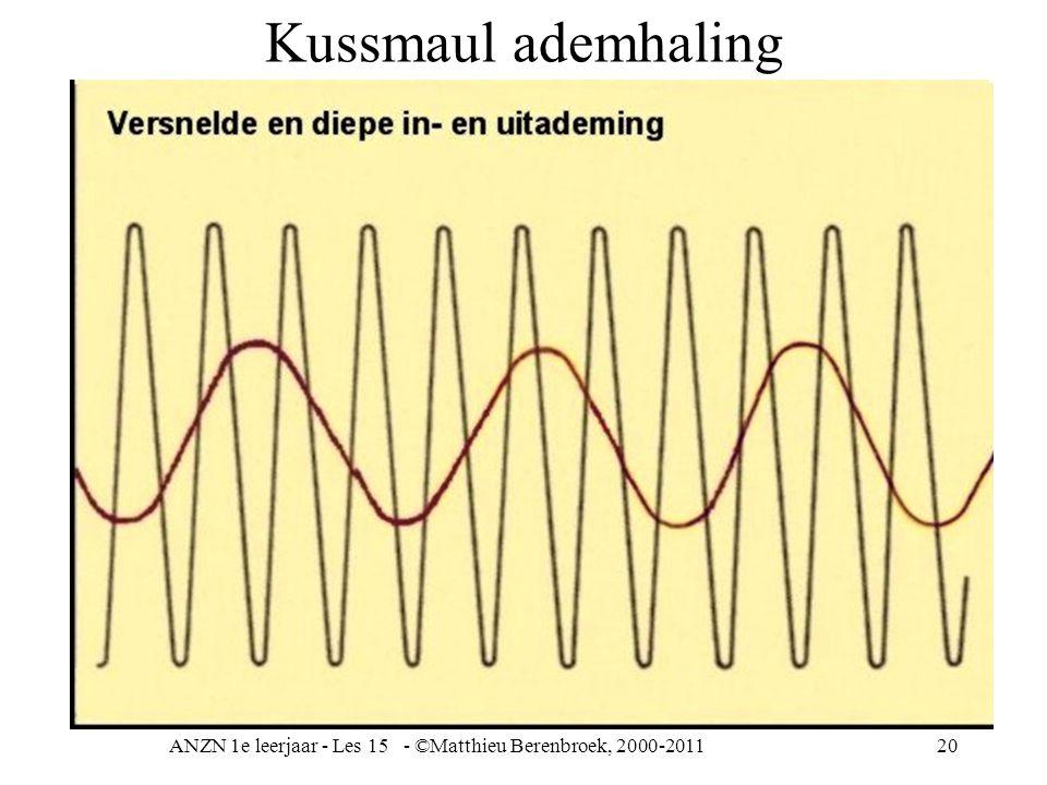 ANZN 1e leerjaar - Les 15 - ©Matthieu Berenbroek, 2000-201120 Kussmaul ademhaling