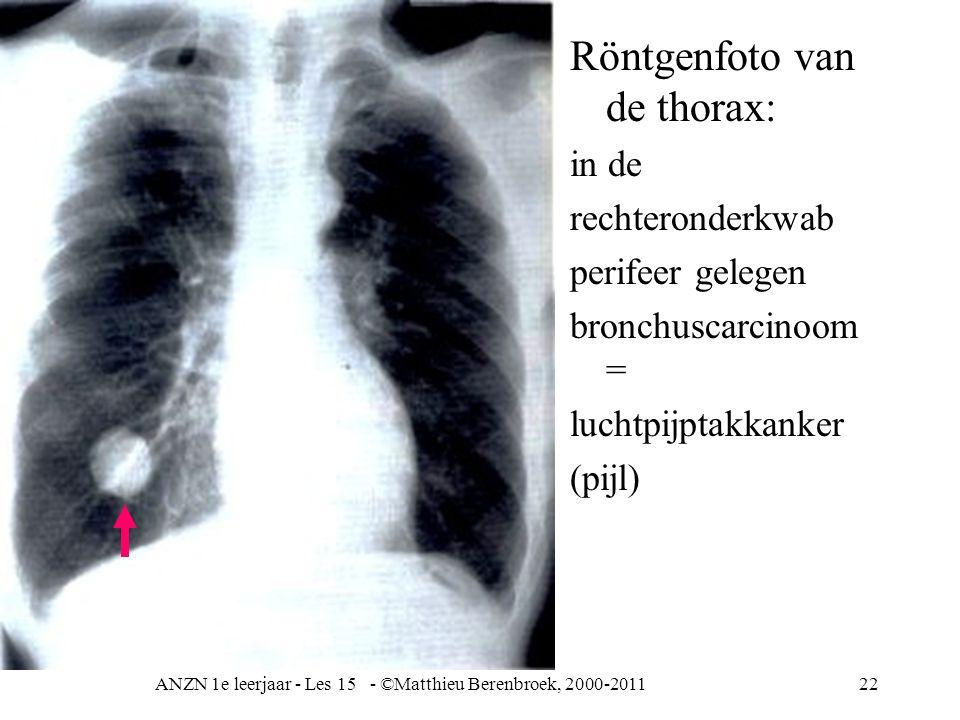 ANZN 1e leerjaar - Les 15 - ©Matthieu Berenbroek, 2000-201122 Röntgenfoto van de thorax: in de rechteronderkwab perifeer gelegen bronchuscarcinoom = l