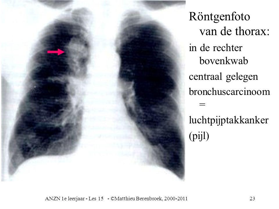 ANZN 1e leerjaar - Les 15 - ©Matthieu Berenbroek, 2000-201123 Röntgenfoto van de thorax: in de rechter bovenkwab centraal gelegen bronchuscarcinoom =