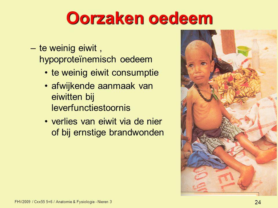 FHV2009 / Cxx55 5+6 / Anatomie & Fysiologie - Nieren 3 24 Oorzaken oedeem –te weinig eiwit, hypoproteïnemisch oedeem te weinig eiwit consumptie afwijk