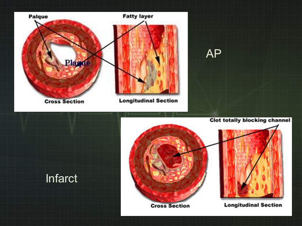 AP Infarct