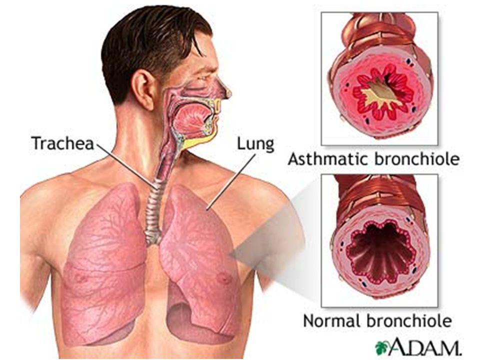 Plaatje astma