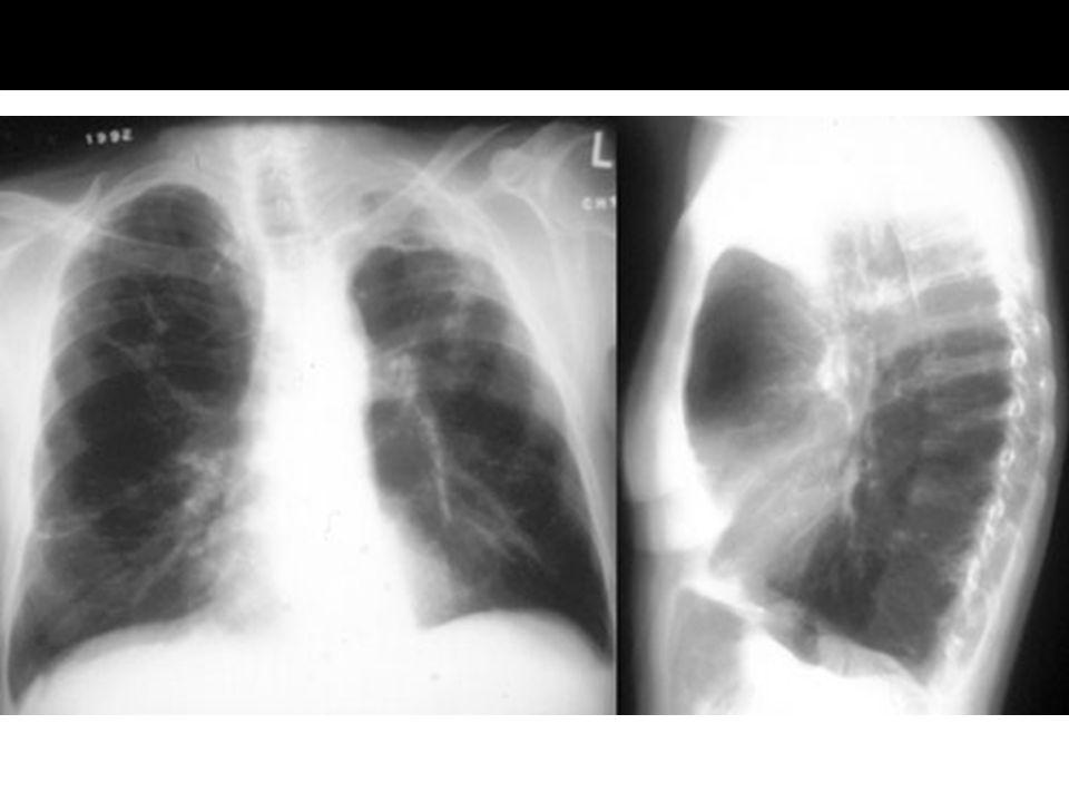 Chronische bronchitis Obstructief emfyseem Symptomen & Klachten Vooral hoesten Kortademigheid bij inspanning en later ook in rust