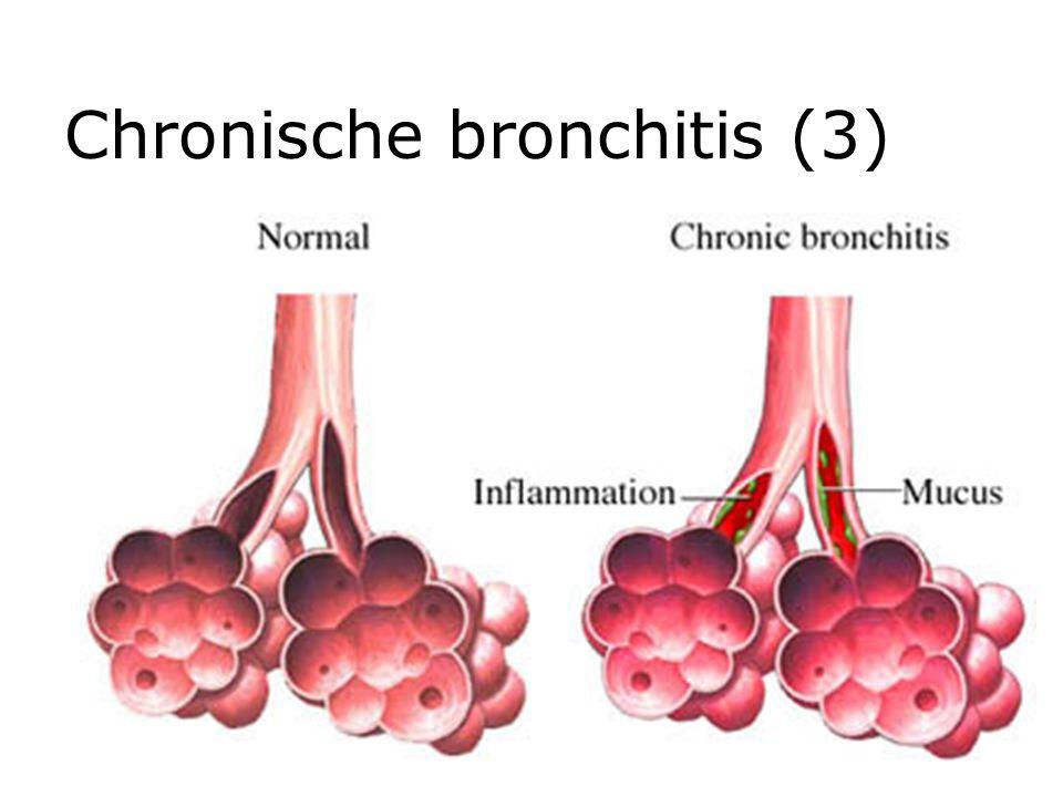 Emfyseem  Progressiefe beschadiging longblaasjes/wanden  Verliest elasticiteit longen  Lucht blijft gedeeltelijk achter in longen  Ademnood