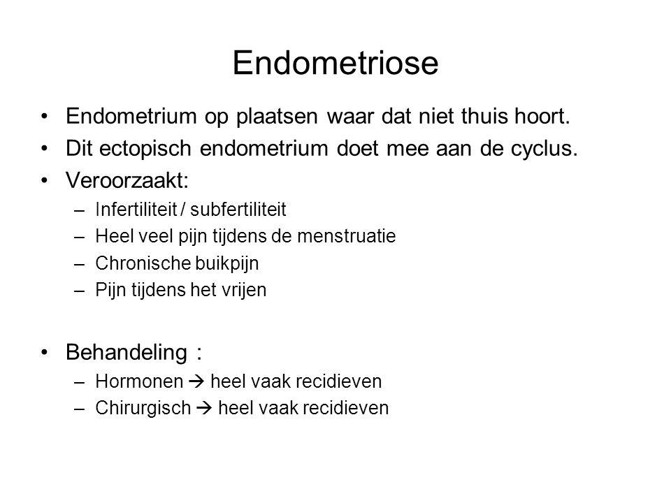 Endometriose Endometrium op plaatsen waar dat niet thuis hoort. Dit ectopisch endometrium doet mee aan de cyclus. Veroorzaakt: –Infertiliteit / subfer
