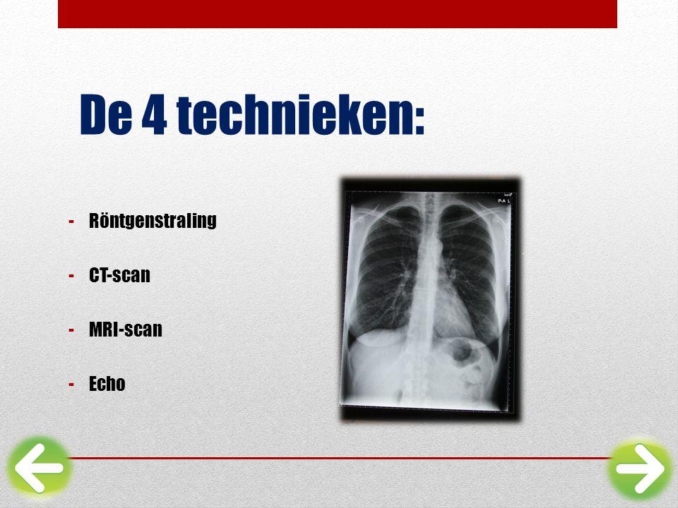De 4 technieken: -Röntgenstraling -CT-scan -MRI-scan -Echo