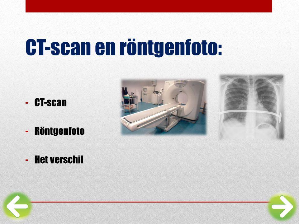 CT-scan en röntgenfoto: -CT-scan -Röntgenfoto -Het verschil