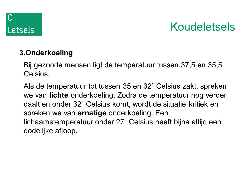 Koudeletsels 3.Onderkoeling Bij gezonde mensen ligt de temperatuur tussen 37,5 en 35,5˚ Celsius.