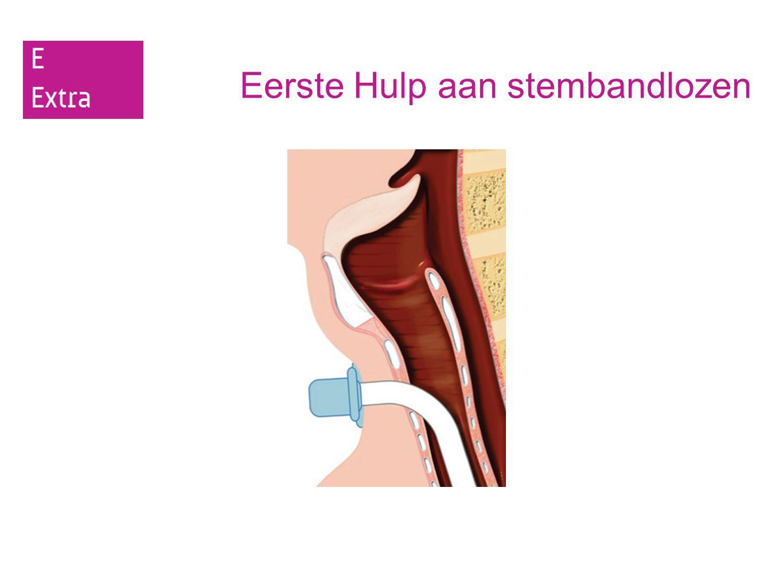 Eerste Hulp aan stembandlozen Samenvatting: 5.Een stembandloze drenkeling moet eerst op de buik worden gelegd en vervolgens omhoog getild om het water uit de longen te laten lopen.