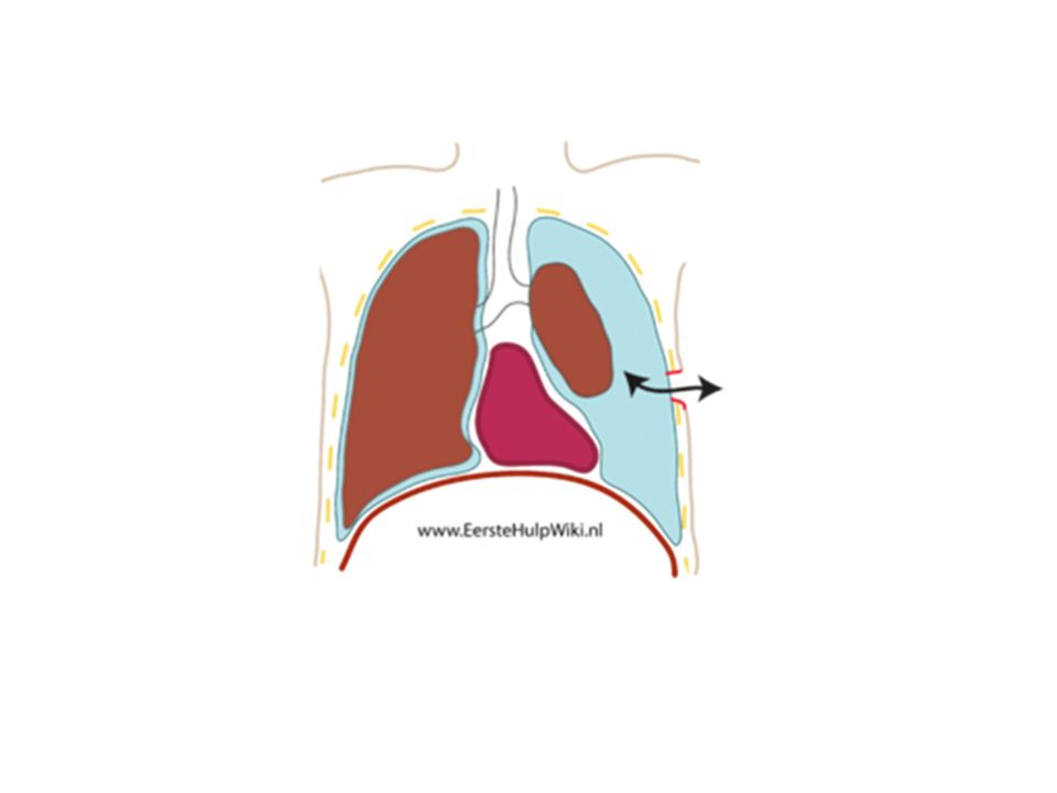 Pneumothorax (lucht) -spontaan (COPD, duikers) - traumatisch (schot, mes, ribbreuk) Hematothorax (bloed) Hydrothorax (vocht)