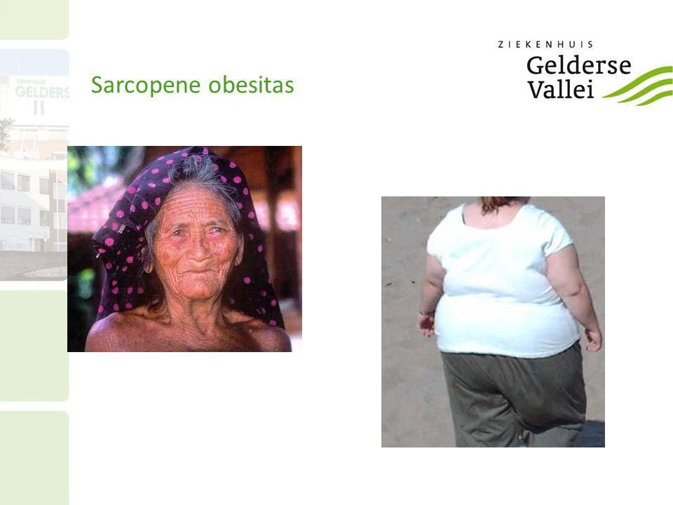 Sarcopene obesitas