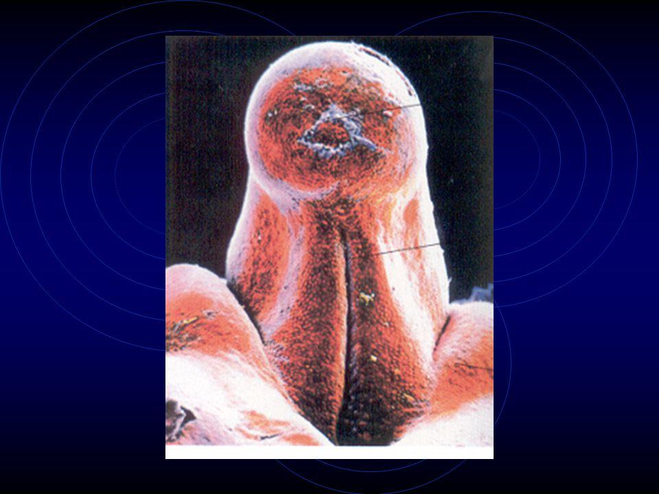 A.2 ♀ Voortplantingsorganen A.3 ♂ Voortplantingsorganen A.4 Secundaire geslachtskenmerken Vanaf puberteit o.i.v.