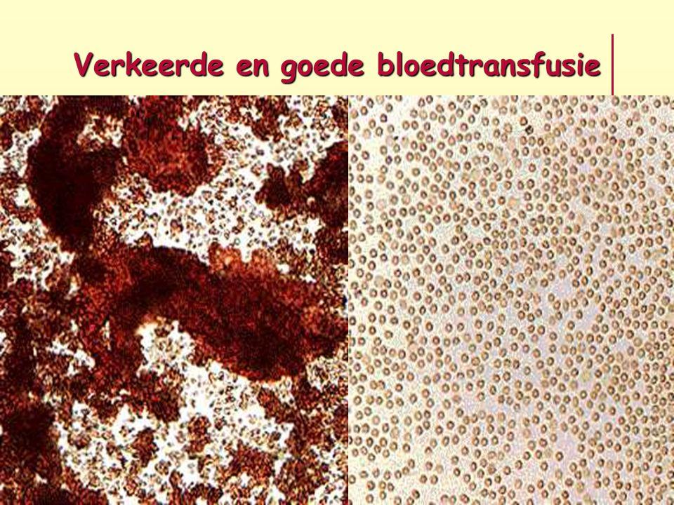 Verkeerde en goede bloedtransfusie