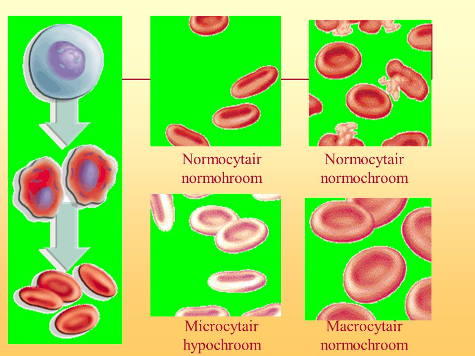 Microcytair hypochroom Macrocytair normochroom Normocytair normochroom Normocytair normohroom