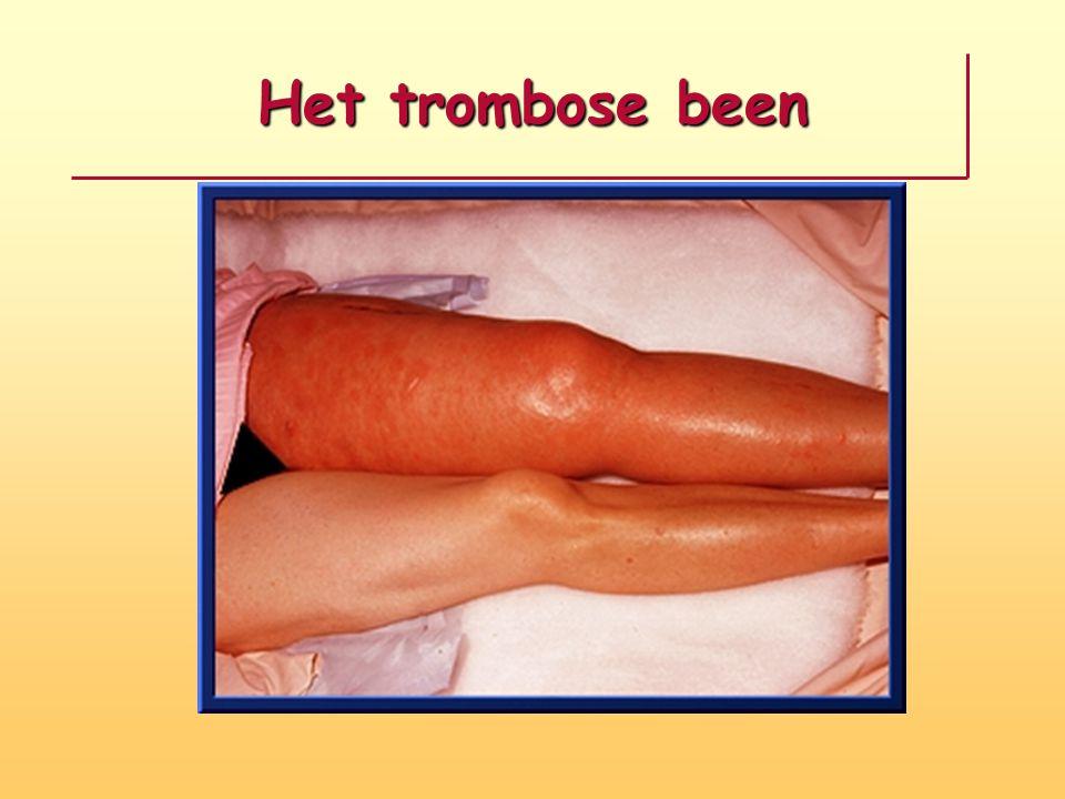 Het trombose been