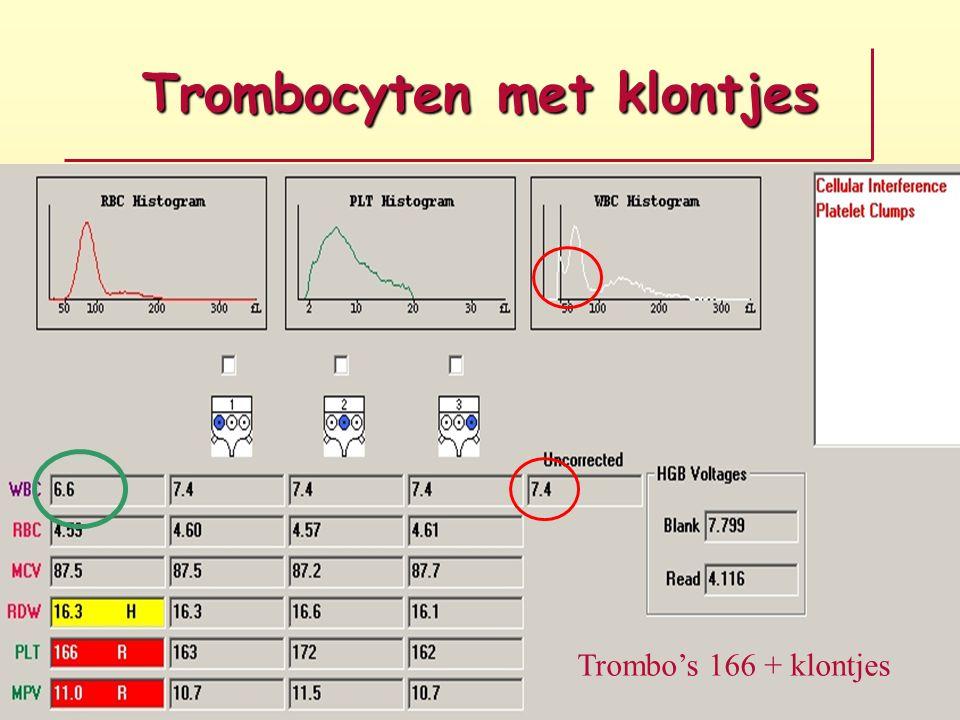 Trombocyten met klontjes Trombo's 166 + klontjes