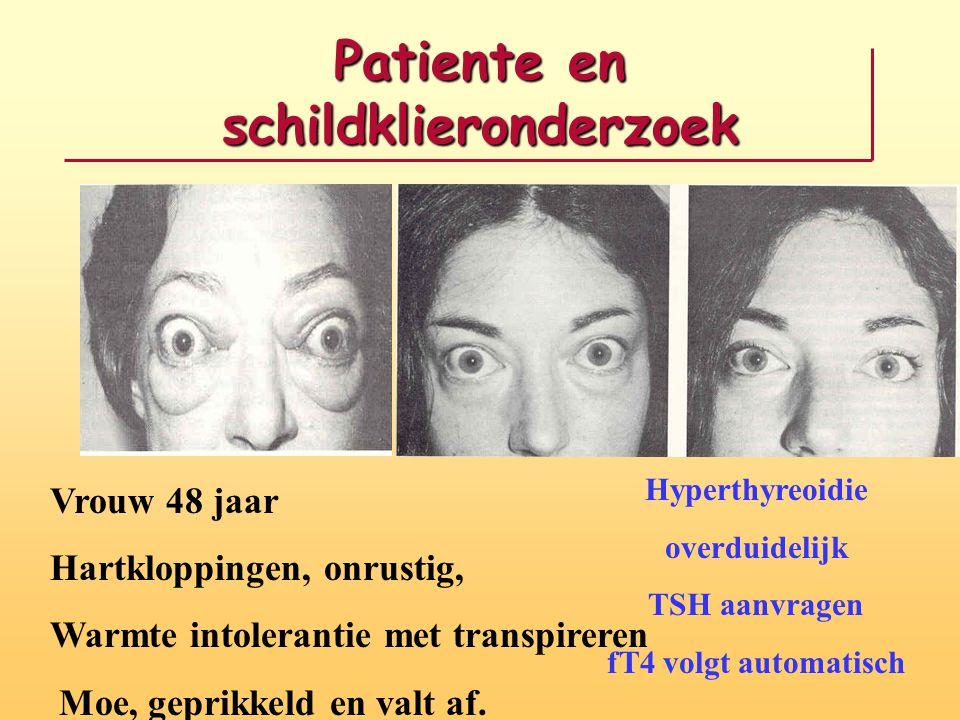 Patiente en schildklieronderzoek Vrouw 48 jaar Hartkloppingen, onrustig, Warmte intolerantie met transpireren Moe, geprikkeld en valt af. Hyperthyreoi