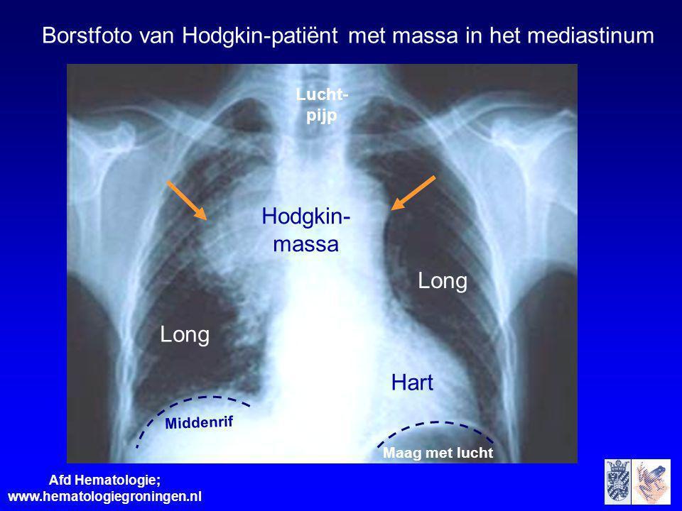 Afd Hematologie; www.hematologiegroningen.nl Hart Lucht- pijp Long Hodgkin- massa Maag met lucht Long Middenrif Borstfoto van Hodgkin-patiënt met mass