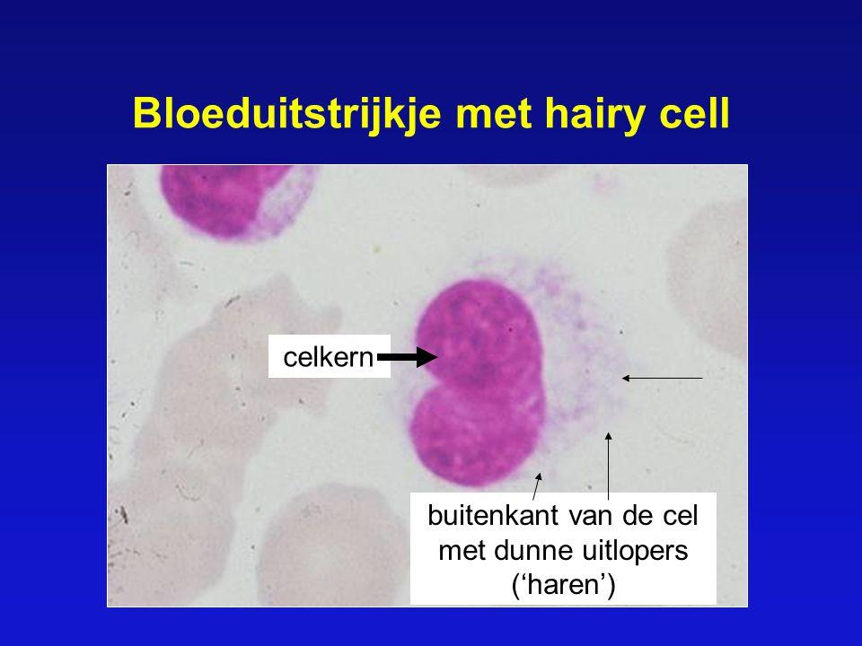 Bloeduitstrijkje met hairy cell celkern buitenkant van de cel met dunne uitlopers ('haren')