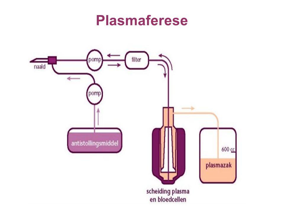 Plasmaferese