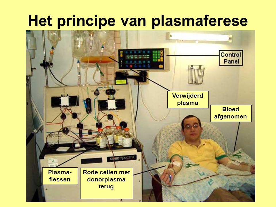Rode cellen met donorplasma terug Bloed afgenomen Verwijderd plasma Plasma- flessen Het principe van plasmaferese