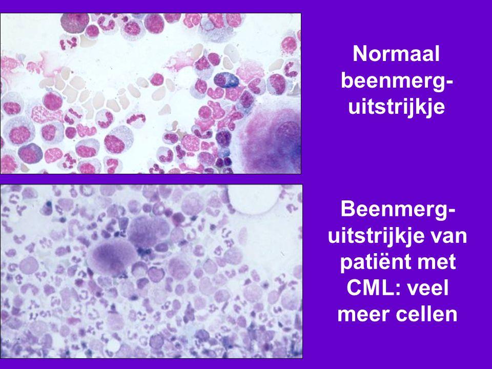Normaal beenmerg- uitstrijkje Beenmerg- uitstrijkje van patiënt met CML: veel meer cellen