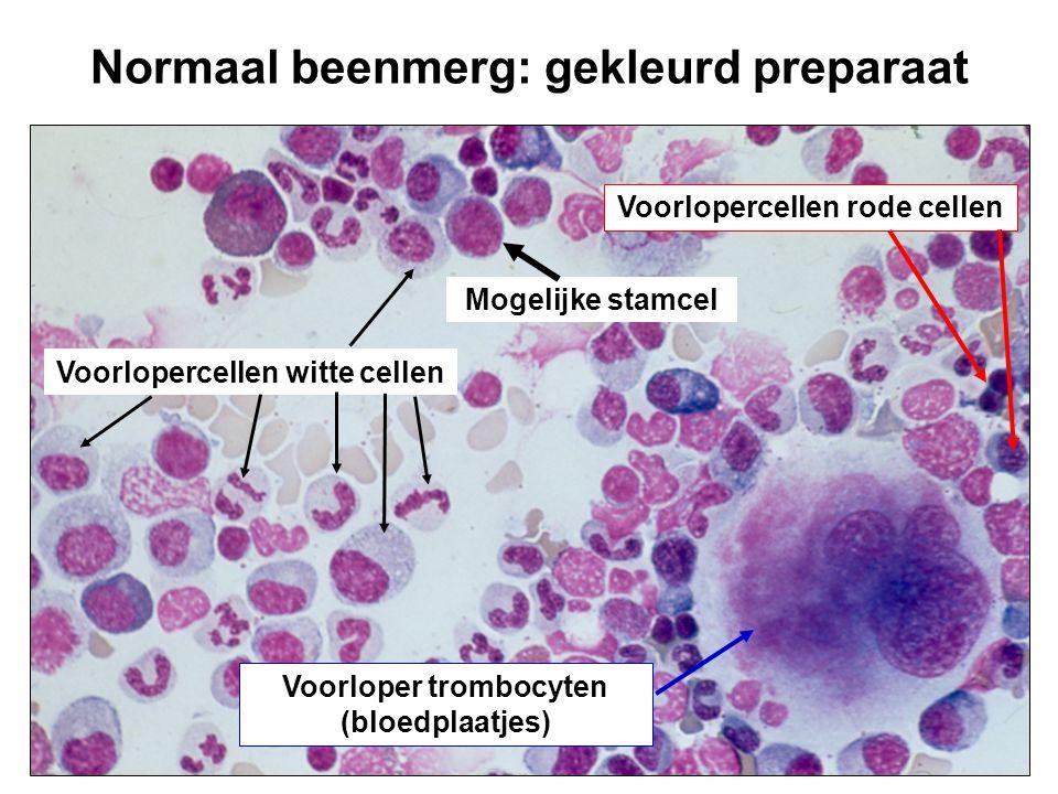Normaal beenmerg: gekleurd preparaat Voorlopercellen witte cellen Mogelijke stamcel Voorlopercellen rode cellen Voorloper trombocyten (bloedplaatjes)