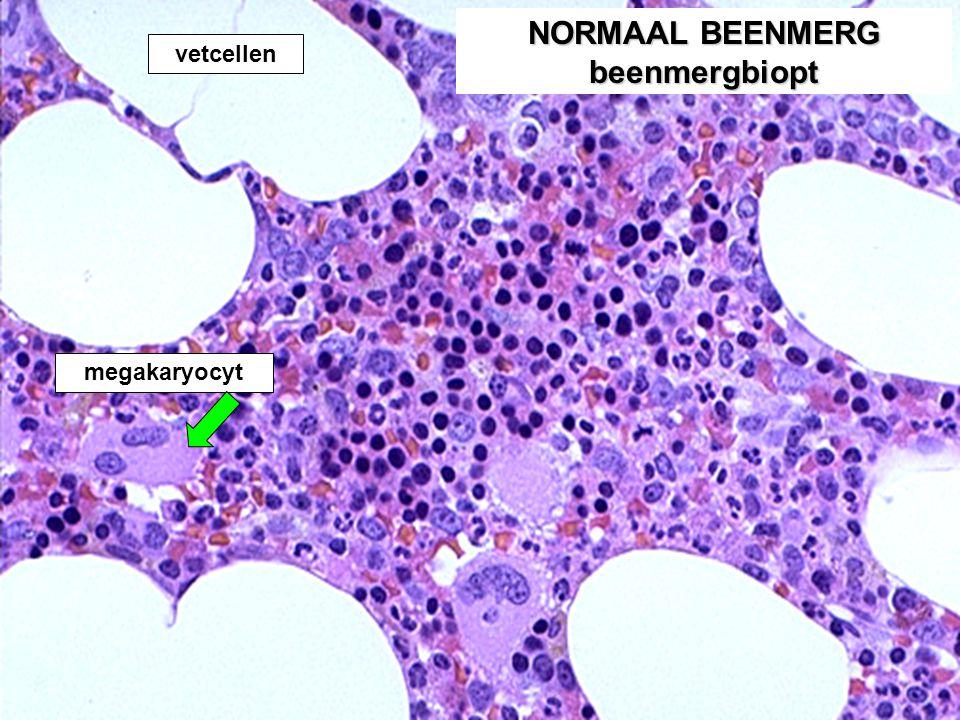 NORMAAL BEENMERG beenmergbiopt megakaryocyt vetcellen
