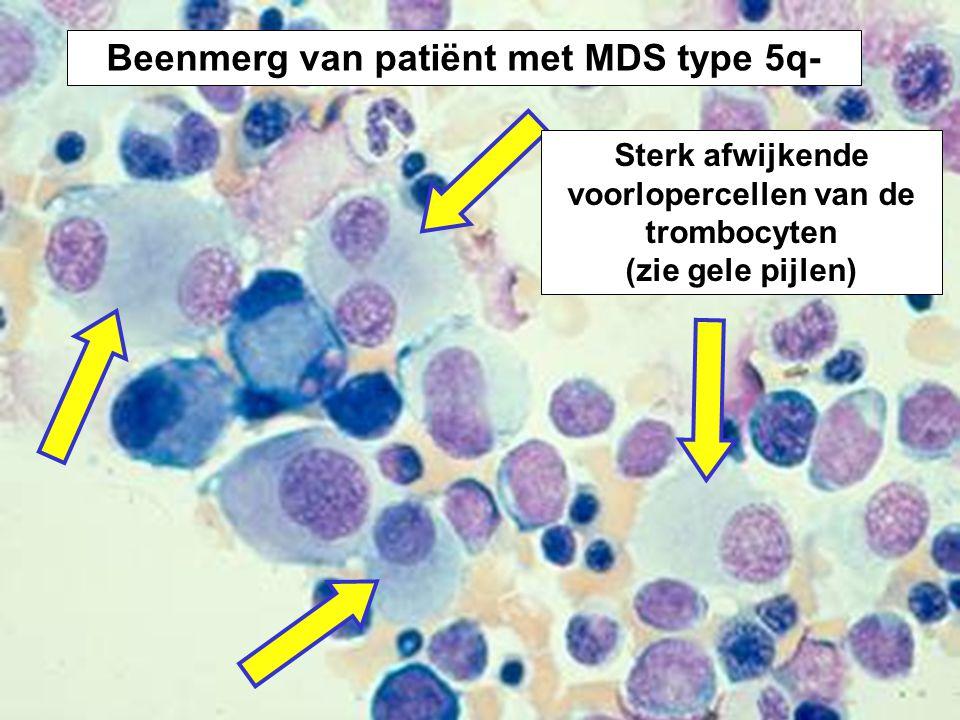 Beenmerg van patiënt met MDS type 5q- Sterk afwijkende voorlopercellen van de trombocyten (zie gele pijlen)