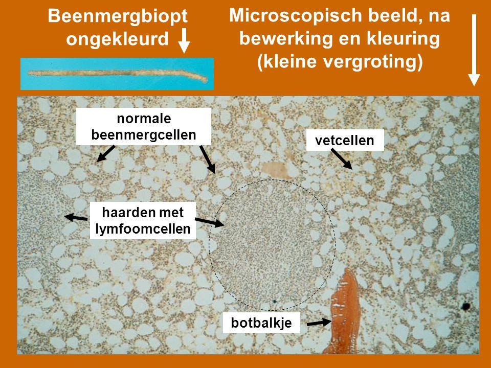 Microscopisch beeld, na bewerking en kleuring (kleine vergroting) normale beenmergcellen vetcellen haarden met lymfoomcellen botbalkje Beenmergbiopt o