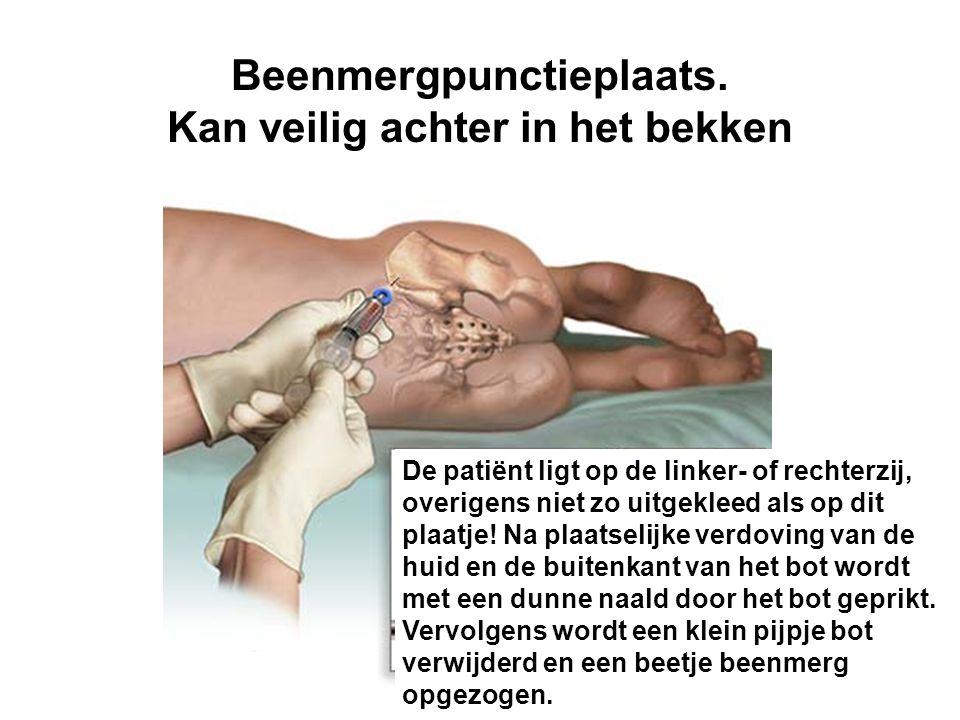 Beenmergpunctieplaats. Kan veilig achter in het bekken De patiënt ligt op de linker- of rechterzij, overigens niet zo uitgekleed als op dit plaatje! N