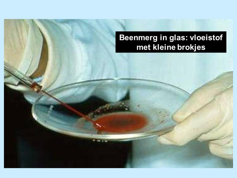 Beenmerg in glas: vloeistof met kleine brokjes