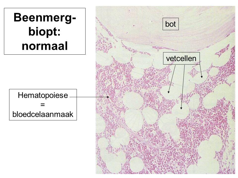 bot vetcellen Hematopoiese = bloedcelaanmaak Beenmerg- biopt: normaal