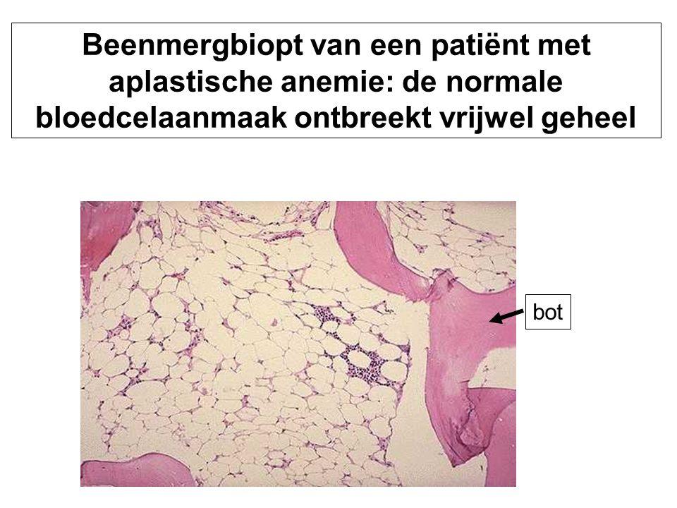 bot Beenmergbiopt van een patiënt met aplastische anemie: de normale bloedcelaanmaak ontbreekt vrijwel geheel