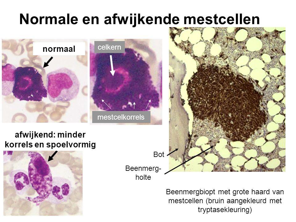 Normale en afwijkende mestcellen normaal afwijkend: minder korrels en spoelvormig celkern mestcelkorrels Beenmergbiopt met grote haard van mestcellen (bruin aangekleurd met tryptasekleuring) Bot Beenmerg- holte