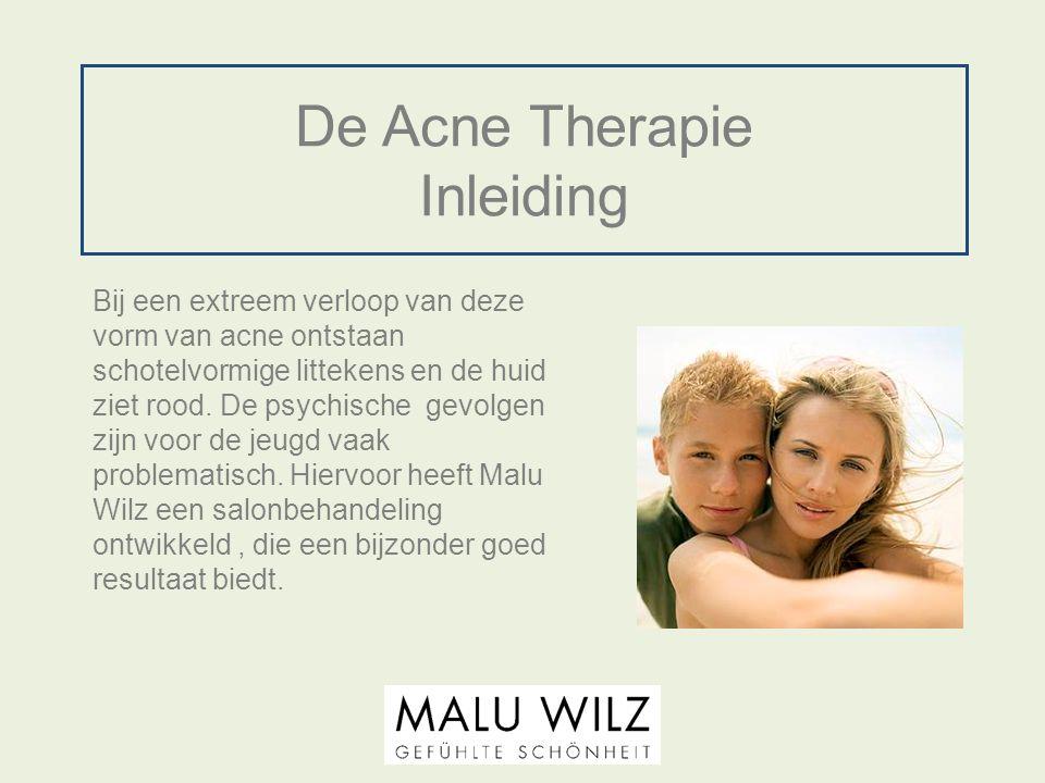 De Acne Therapie Inleiding Bij een extreem verloop van deze vorm van acne ontstaan schotelvormige littekens en de huid ziet rood. De psychische gevolg