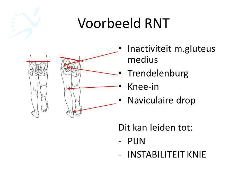 Voorbeeld RNT Inactiviteit m.gluteus medius Trendelenburg Knee-in Naviculaire drop Dit kan leiden tot: -PIJN -INSTABILITEIT KNIE