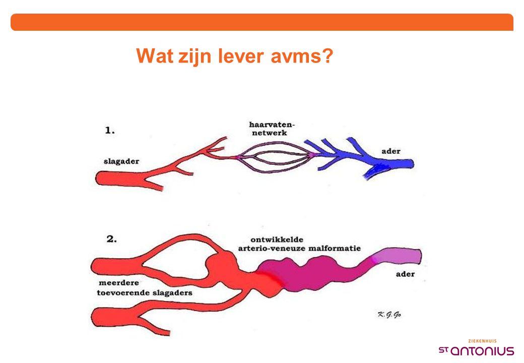 Wat zijn lever avms?