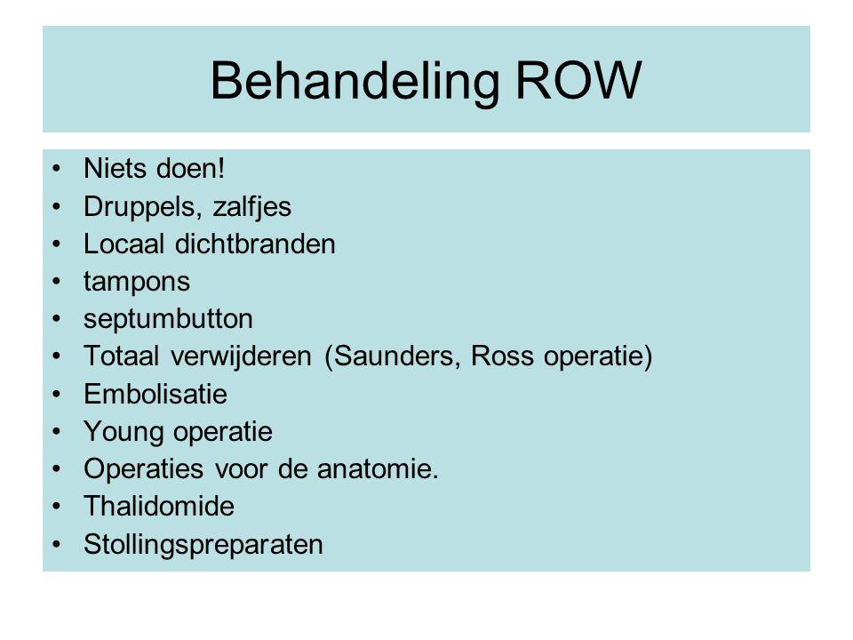 Behandeling ROW Niets doen! Druppels, zalfjes Locaal dichtbranden tampons septumbutton Totaal verwijderen (Saunders, Ross operatie) Embolisatie Young