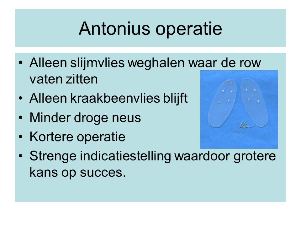 Antonius operatie Alleen slijmvlies weghalen waar de row vaten zitten Alleen kraakbeenvlies blijft Minder droge neus Kortere operatie Strenge indicati