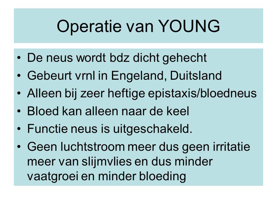 Operatie van YOUNG De neus wordt bdz dicht gehecht Gebeurt vrnl in Engeland, Duitsland Alleen bij zeer heftige epistaxis/bloedneus Bloed kan alleen na
