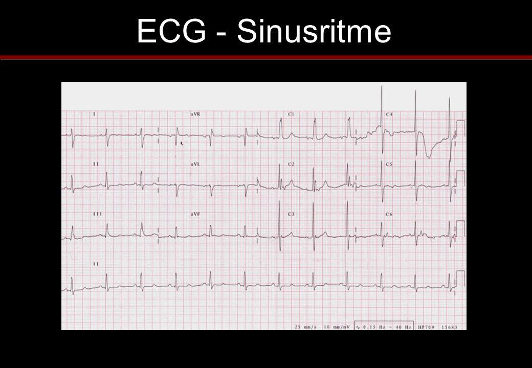 ECG - Sinusritme
