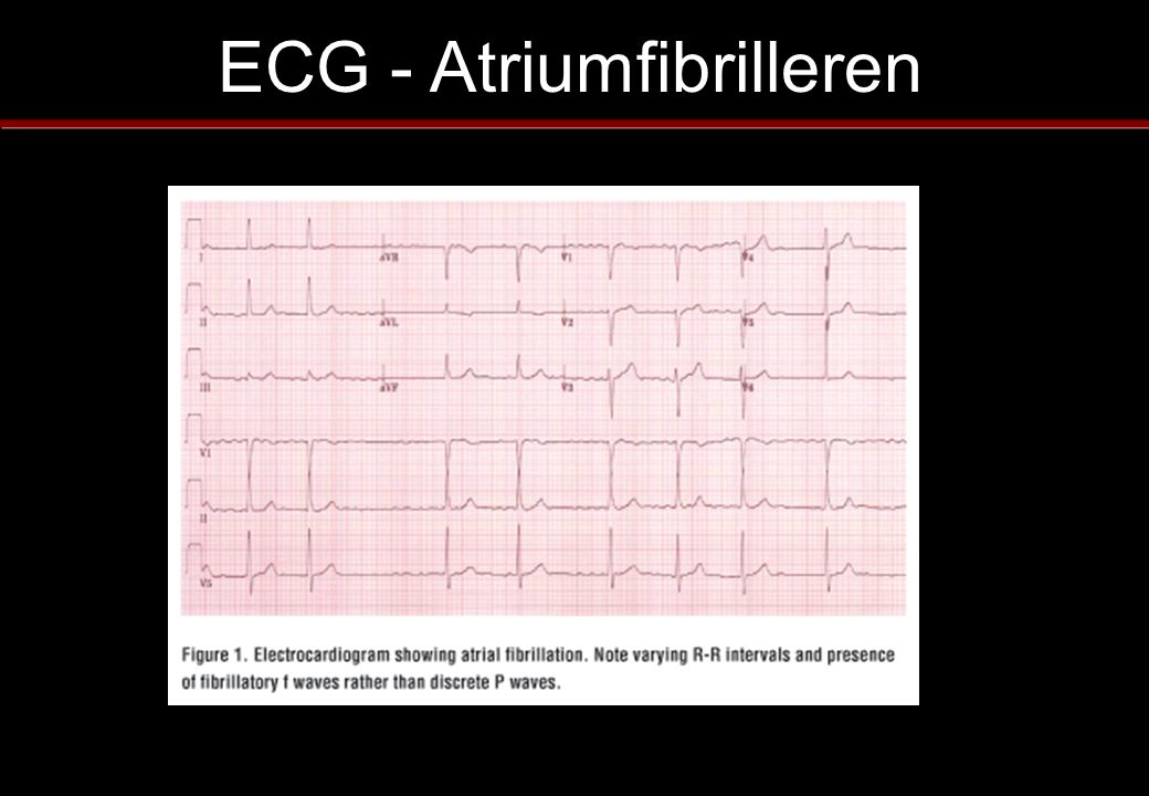 ECG - Atriumfibrilleren