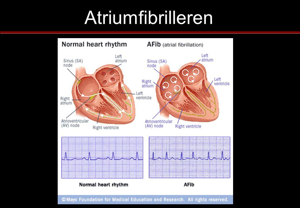 Risico inschatting Hartfalen, verminderde pompfunctie Hoge bloeddruk Leeftijd > 75 jr Suikerziekte Eerder CVA/TIA