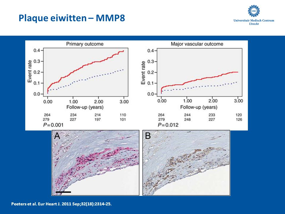 Plaque eiwitten – MMP8 Peeters et al. Eur Heart J. 2011 Sep;32(18):2314-25.