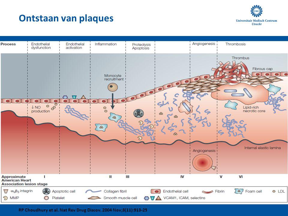 Ontstaan van plaques RP Choudhury et al. Nat Rev Drug Discov. 2004 Nov;3(11):913-25