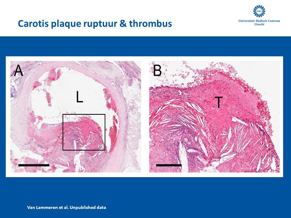 Carotis plaque ruptuur & thrombus Van Lammeren et al. Unpublished data