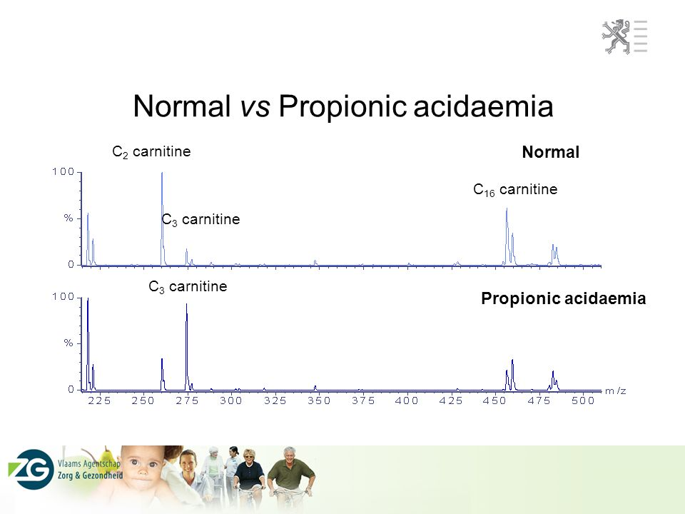 Normal vs Propionic acidaemia C 2 carnitine C 3 carnitine C 16 carnitine Normal C 3 carnitine Propionic acidaemia