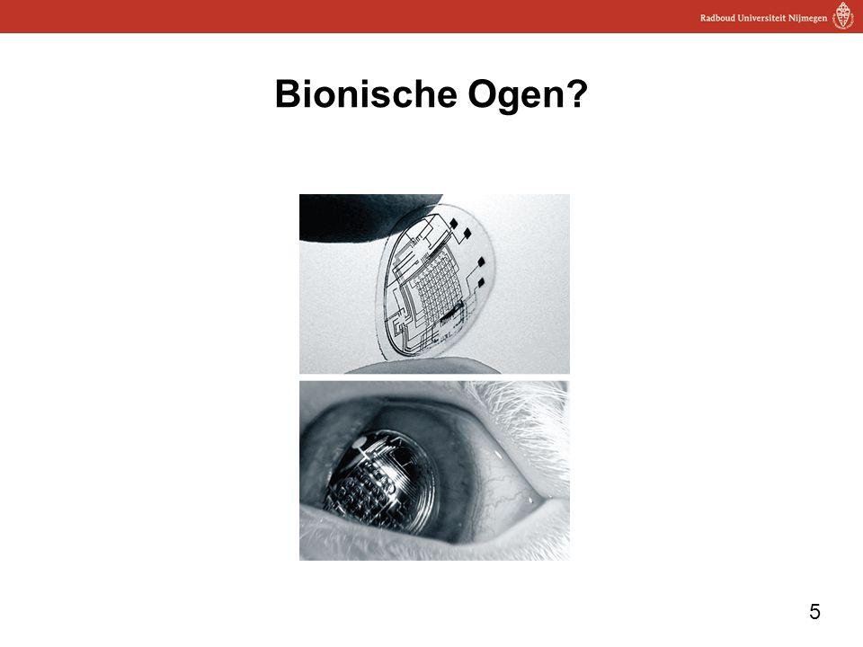 5 Bionische Ogen?